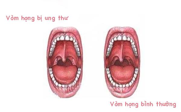 Những triệu chứng muộn của ung thư vòm họng 1