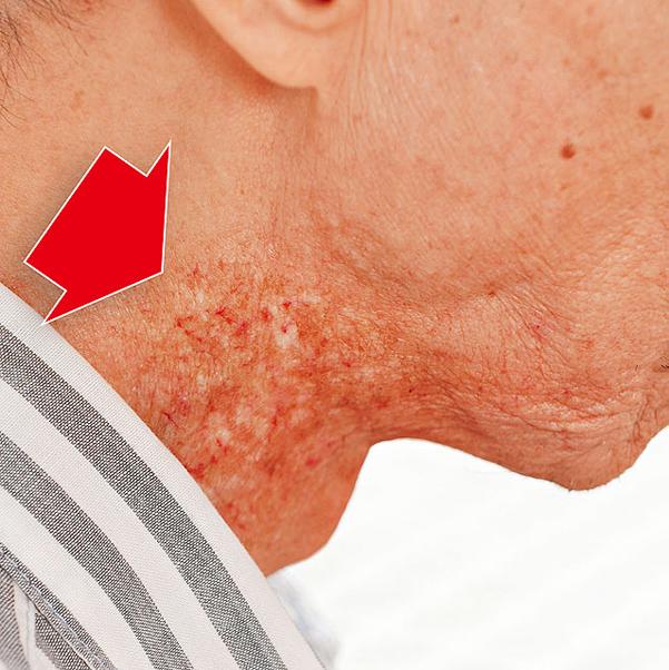 Những biểu hiện ung thư vòm họng ở giai đoạn đầu 1