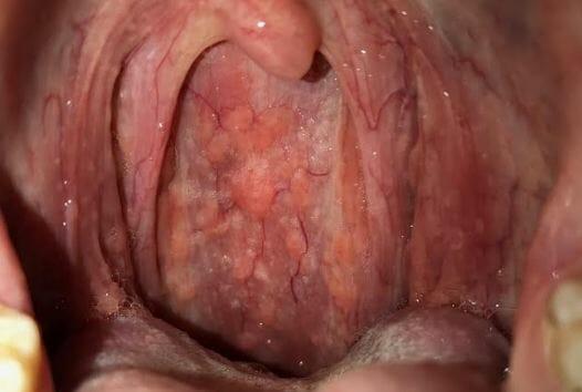 hình ảnh viêm họng hạt 2