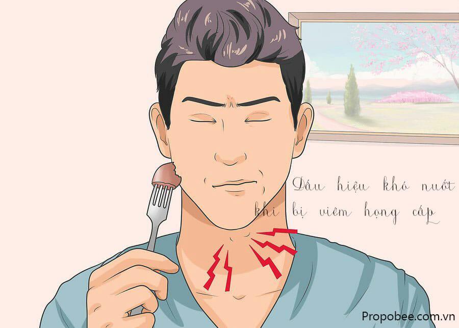 Dấu hiệu viêm họng cấp là gì 1